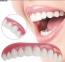 Съемные виниры Perfect Smile Veneers (верхняя) 0